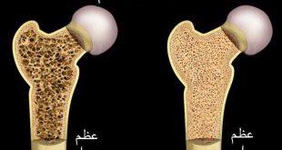بالصور ما هو مرض هشاشة العظام , اسباب هشاشة العظام وطرق علاجه. 1072 3 310x165