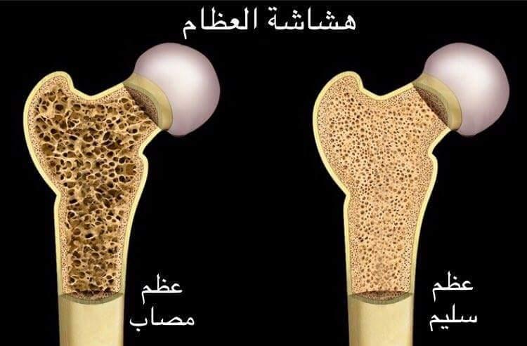 صور ما هو مرض هشاشة العظام , اسباب هشاشة العظام وطرق علاجه.