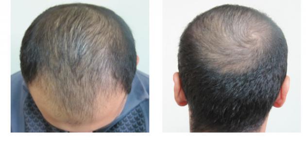صورة علاج الحكه بعد زراعة الشعر , العنايه الخاصة لعلاج الحكة ما بعد عمليه زراعه الشعر