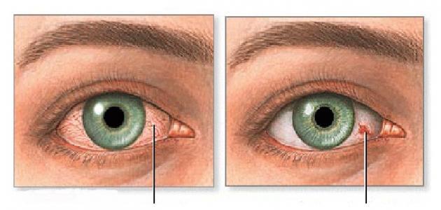 صورة اسباب صفار العين , توضيخ المرض الذى يؤدى الى صفر العين