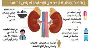 صور اعراض الفشل الكلوي الحاد , مرض الفشل الكلوى الحاد واعراضه