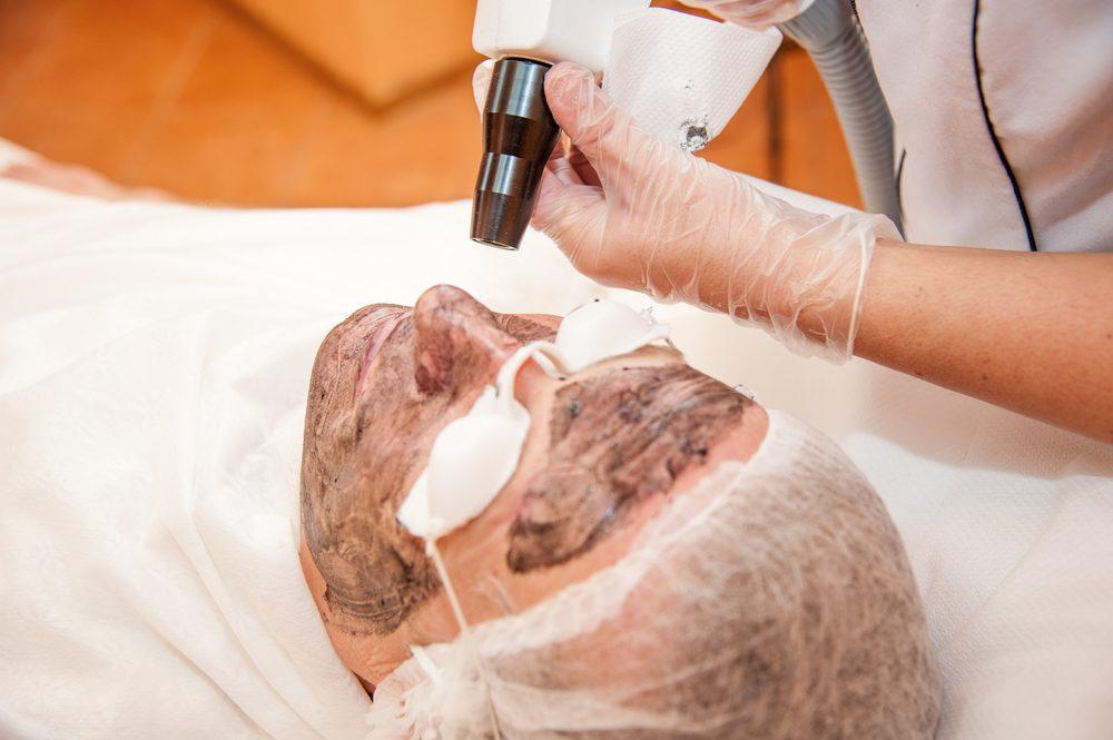 بالصور جهاز تنظيف البشرة بالليزر , الايجابيات و السلبيات للليزر 5959 7