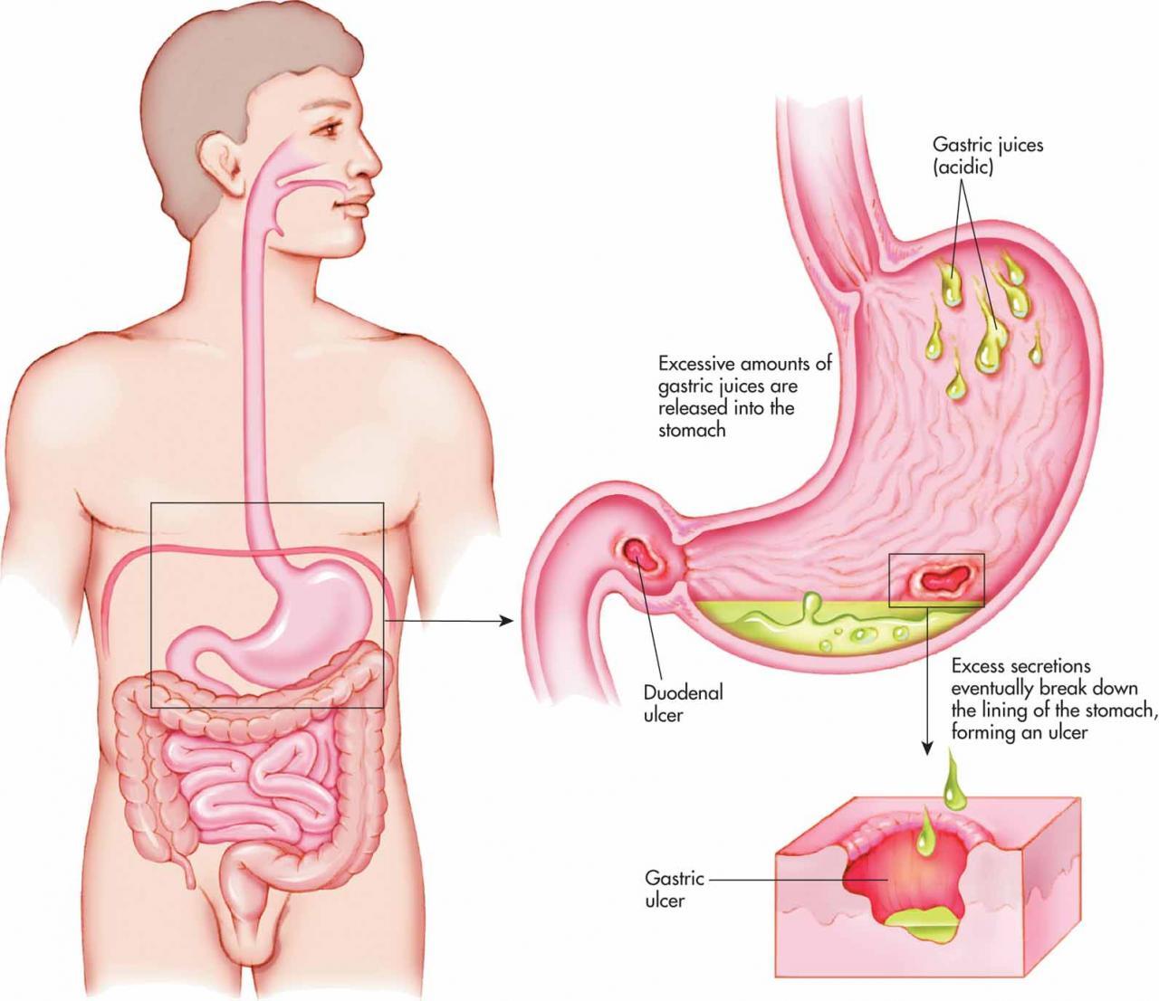 صور علاج قرحة المعدة , تعرف على اعراض قرحة المعدة