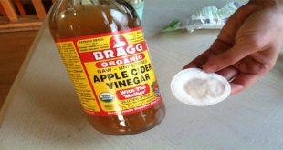 صور فوائد خل التفاح للوجه , مميزات خل التفاح للوجه