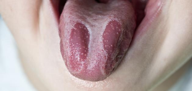 صور علاج حرارة اللسان , اسباب وعلاج فطريات اللسان