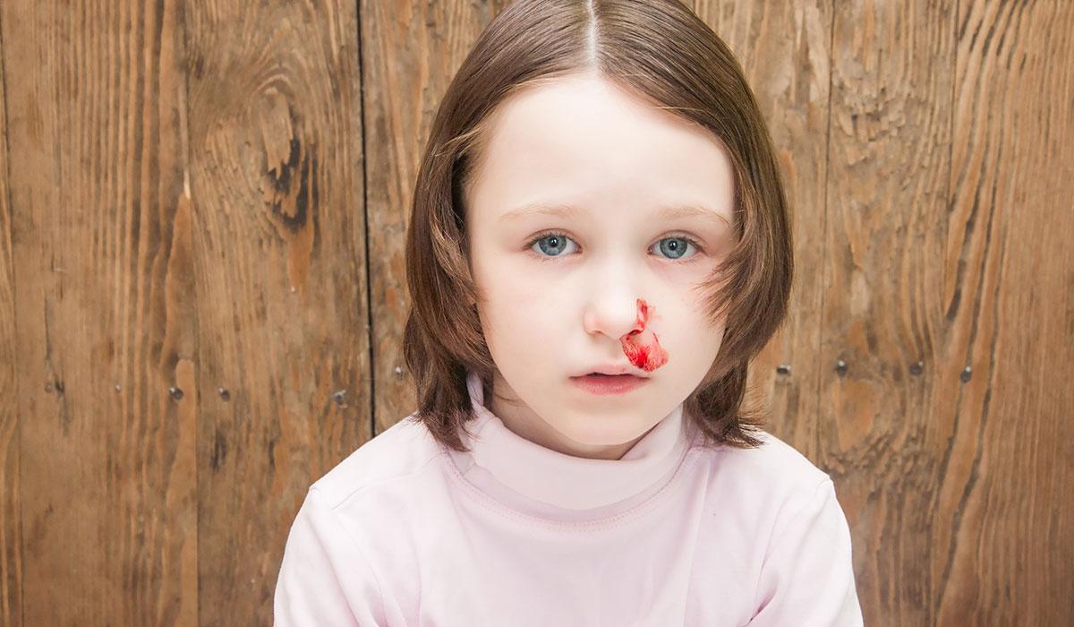 بالصور اسباب نزيف الانف عند الاطفال , علاج النزيف عند الاطفال 109 1