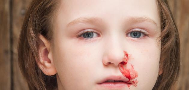 بالصور اسباب نزيف الانف عند الاطفال , علاج النزيف عند الاطفال 109 3