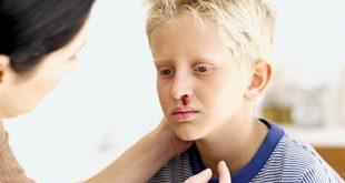 صورة اسباب نزيف الانف عند الاطفال , علاج النزيف عند الاطفال
