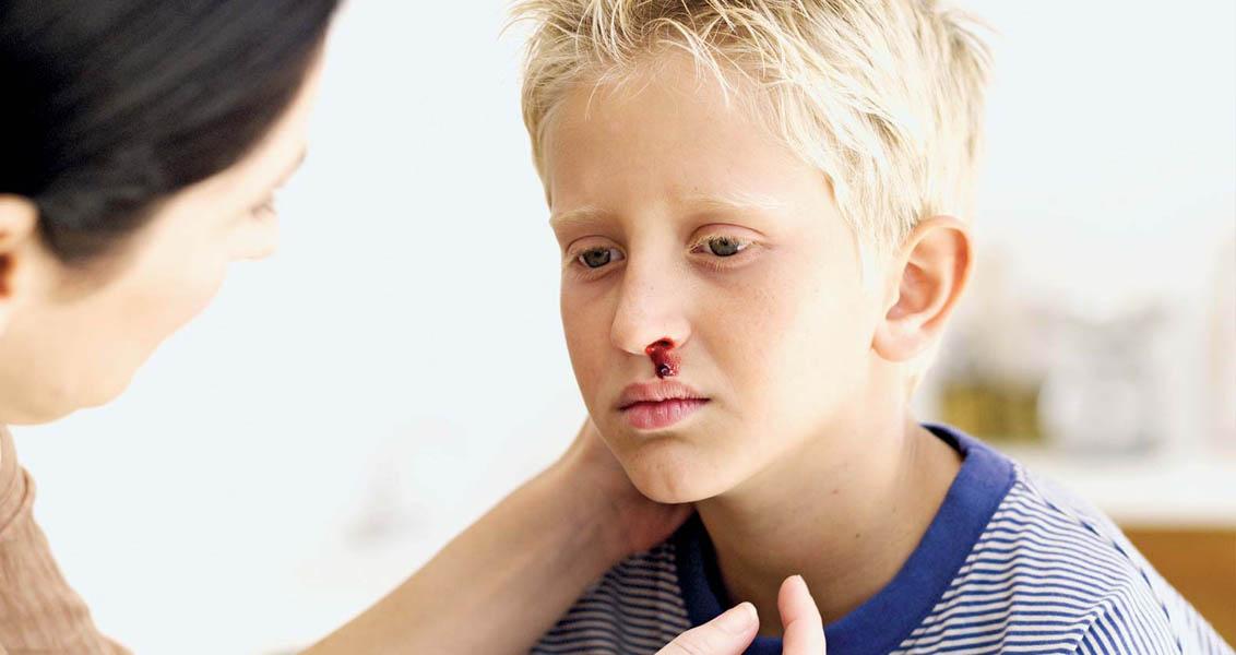 بالصور اسباب نزيف الانف عند الاطفال , علاج النزيف عند الاطفال 109