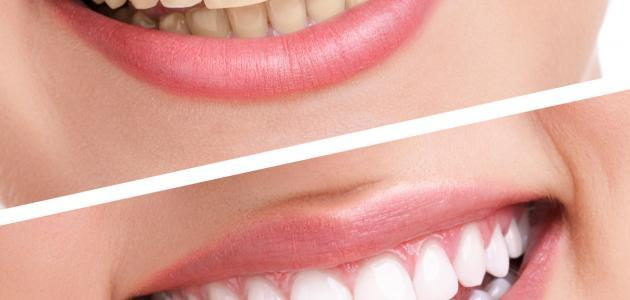 صورة فوائد الكركم للاسنان , خصائص الكركم الطبية