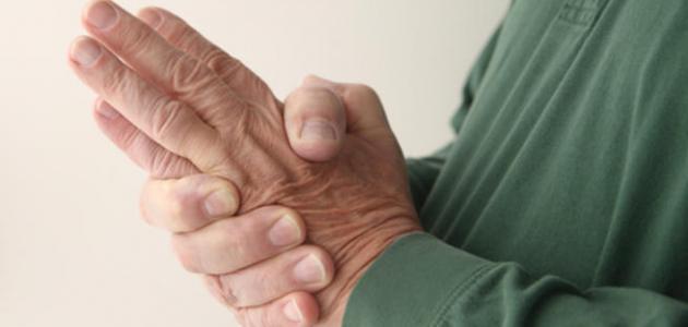 بالصور اسباب تنميل اليدين , لماذا تنمل اليد؟ 1691