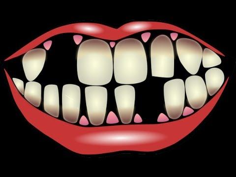 صور سقوط السن في المنام , تفسير سقوط الاسنان