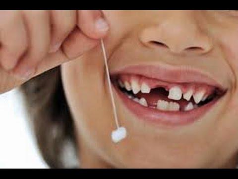 صورة حلم وقوع الاسنان , معني فقد الاسنان في المنام