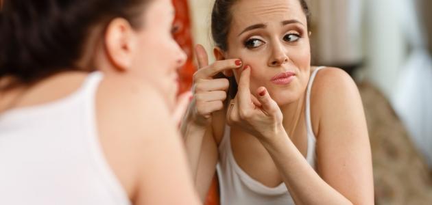 صورة ظهور حب الشباب في بداية الحمل , علاج للحبوب الوجه للحامل