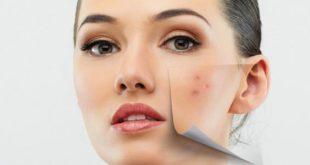 بالصور ظهور حب الشباب في بداية الحمل , علاج للحبوب الوجه للحامل 4291 3 310x165