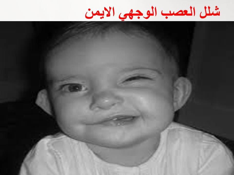 صور شلل العصب الوجهي , معلومات تفيد فى علاج شلل العصب الوجهى