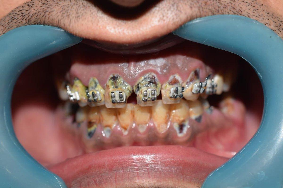 صور ربط الاسنان للتنحيف , وسائل مختلفة و غير تقليدية للتنحيف