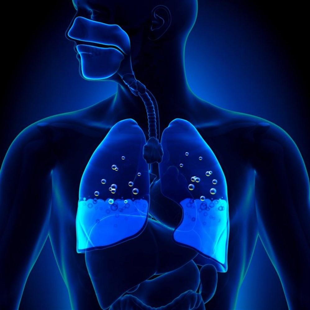 صور التخلص من ماء الرئة , طرق مختلفة للتخلص من ماء الرئة
