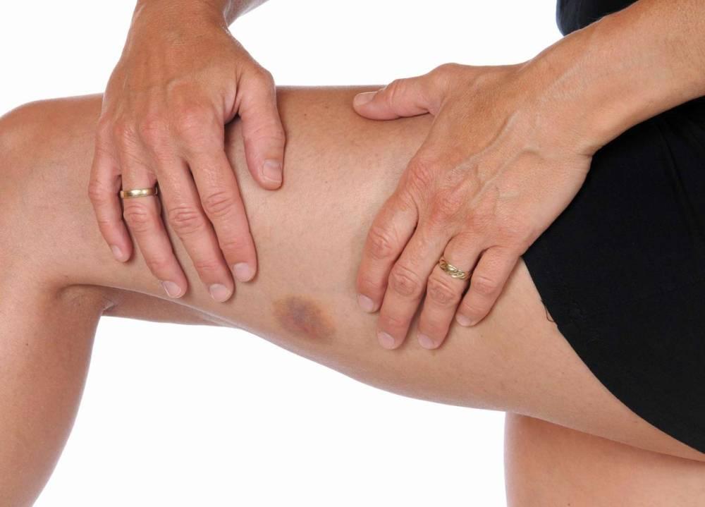 صورة متى تكون الكدمات خطيرة , اسباب الكدمات ومدى خطورتها