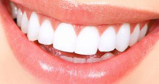 بالصور خلطه لتبيض الاسنان , طرق طبيعية للتخلص من اصفرار الاسنان 1844 3 310x165