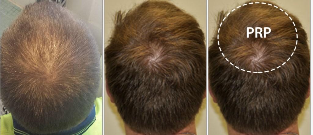 صورة حقن الشعر بالبلازما , احدث تقنية لمنع تساقط شعرك