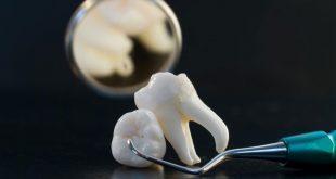 بالصور ما تفسير خلع الضرس في المنام , سقوط الاسنان له معانى اخرى 5696 3 310x165