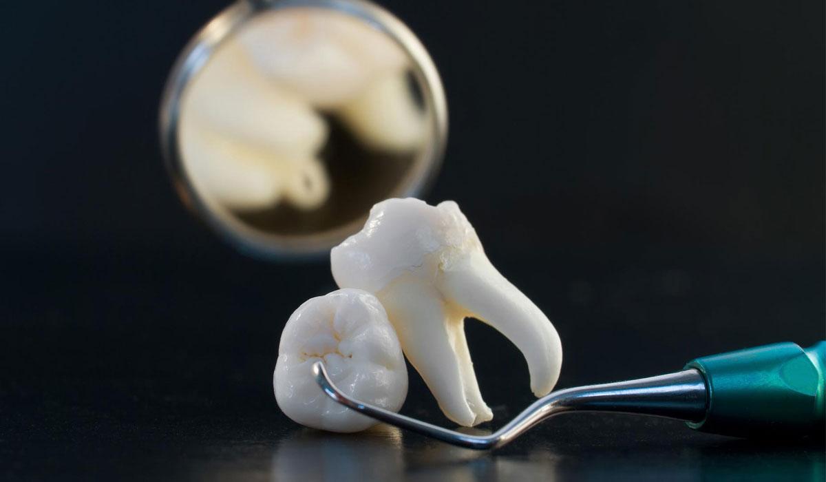 صور ما تفسير خلع الضرس في المنام , سقوط الاسنان له معانى اخرى