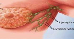بالصور اعراض ورم الثدي , بعض اصناف الطعام تساعدك على عدم الوقوع فى مرض السرطان 5717 2 310x165