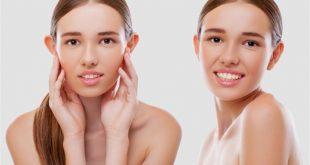 صورة عملية تجميل الاذن , عدة اسباب لعملية التجميل