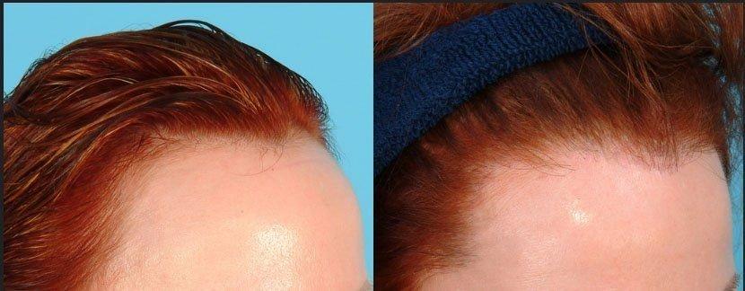 صورة تكلفة زراعة الشعر للنساء , اسعار زراعة الشعر