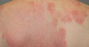 صور علاج الطفح الجلدي , طرق علاج الطفح الجلدى