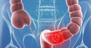 صورة مرض القولون العصبي اسبابه وعلاجه , تعرف على معلومات عن القولون العصبي