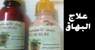 صورة علاج البهاق بالاعشاب جابر القحطاني , اسهل واسرع علاج البهاق