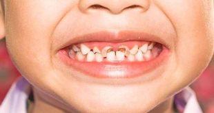 صور علاج تسوس الاسنان الامامية عند الاطفال , كيف تحمي طفلك من تسوس الاسنان