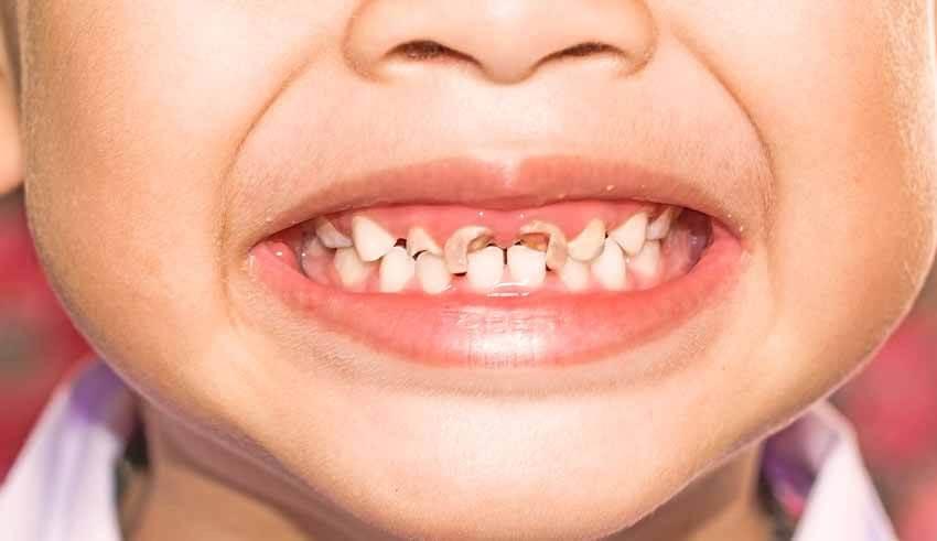صورة علاج تسوس الاسنان الامامية عند الاطفال , كيف تحمي طفلك من تسوس الاسنان