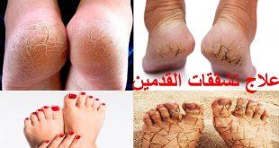 صور علاج تشقق القدمين , اسرع و احسن علاج لتشقق القدمين