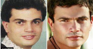 صورة عمليات التجميل للرجال قبل وبعد , عمليات الجميل تغير من الرجل في الشكل