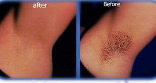 صورة اضرار ازالة الشعر بالليزر , تعرفي على خطر ازالة الشعر بالليزر