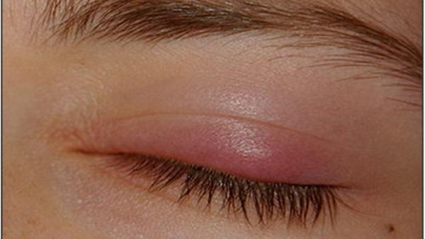 صور علاج كيس دهني , كيفية علاج الكيس الدهنى بالعين