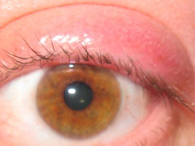 صور علاج حبة في جفن العين , تخلص من حبوب الجفن نهائيا