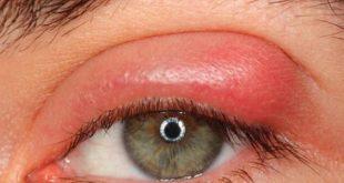 صورة علاج حبة في جفن العين , تخلص من حبوب الجفن نهائيا