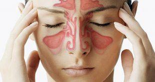 صورة صداع في الراس , اسباب وعلاج الصداع