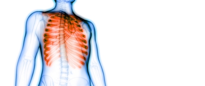 صورة التهاب عضلات الصدر , التهاب عضلات القفص الصدرى