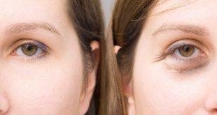 صور اسباب دخول العين لجوه , اسباب دخول اعين للداجل وعلاجها
