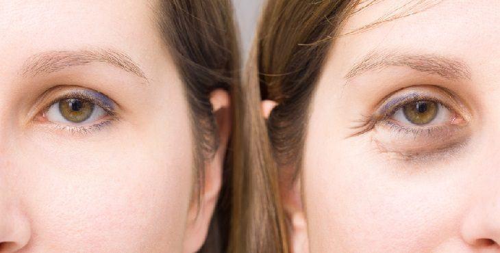 صورة اسباب دخول العين لجوه , اسباب دخول اعين للداجل وعلاجها