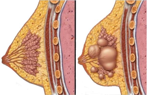 صورة من اعراض الحمل الم في الثدي , الام الثدي من اعراض الحمل