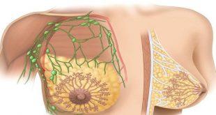 صور من اعراض الحمل الم في الثدي , الام الثدي من اعراض الحمل