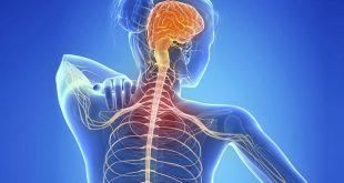 صور اعراض امراض الاعصاب , اسباب وعلاج التهاب الاعصاب