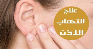 صور علاج الاذن الوسطى بالاعشاب , طرق علاج الم الاذن بالاعشاب