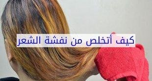 صور علاج نفشة الشعر , علاج هيشان الشعر